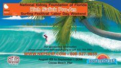 National Kidney Foundation Fundraiser: Surfboard Raffle!