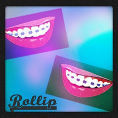 Rollip braces and smile