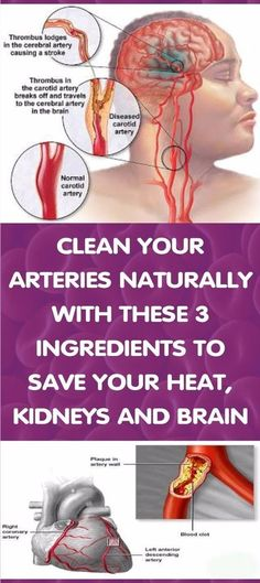 CLEAN ARTERIES MATURALLY WITH 3 INGREDIENTS
