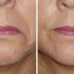 Hangende mondhoeken kan je heel simpel voorkomen