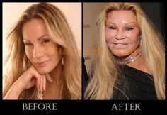SHE USED TO BE GORGEOUS...Celebrity Plastic Surgery Disasters | ... After Pictures Of Top 10 Plastic Surgery Fails Celebrities wallpaper