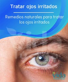 Con estos remedios caseros podrás tratar los ojos irritados.