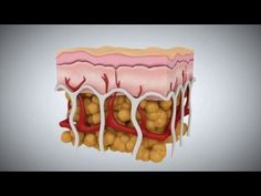 Metodo Anticellulite non Invasivo Naturale