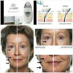 Facial massage for deep wrinkles