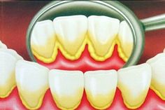 Como REMOVER o Tártaro dos Dentes em 5 Minutos SEM Ir ao Dentista | Dicas de Saúde