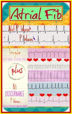 More EKG Infographics How to Differentiate Heart Blocks Atrial Fib Junctional Rhythms PJCs . College Nursing, Nursing School Notes, Nursing Tips, Funny Nursing, Nursing Memes, Cardiac Nursing, Nursing Mnemonics, Ekg Interpretation, Cardiac Rhythms