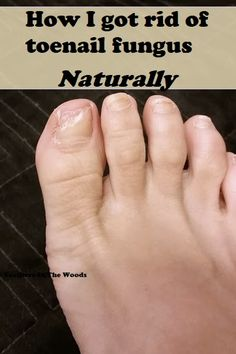 Toenail Fungus Remedies Toenail fungus is destructive to your nails and more common than you think! After trying several over the counter remedies that failed, I turned to natural remedies and finally got rid of my toe nail fungus. Toe Fungus Remedies, Toenail Fungus Remedies, Toenail Fungus Treatment, Fungus Toenails, Home Remedies, Natural Remedies, Health Remedies, Nails And More, Fungal Infection