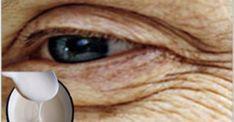 Морщины вокруг глаз и рта исчезнут. Просто используйте этот рецепт