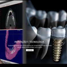 A Cirurgia Guiada por Computador permite a colocaçāo do Implante dental sem corte bisturi possibilitando uma cirurgia mais rápida e mais conforto ao paciente na recuperaçāo Venha conhecer mais sobre essa tecnica com Dr Fabio Paes que é especialista em Implantes e mestre em Reabilitaçāo Oral. #facetasdeporcelana #lentesdecontatodental #implantedental #implantology #teeth #dentalimplants #extraction #implantation #implant #oralsurgery #dentistry #odontologia #omfsurgery #odontología…