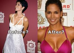 Celebrity Halle Berry Plastic Surgery Before And After - http://www.celeb-surgery.com/celebrity-halle-berry-plastic-surgery-before-and-after/?Pinterest