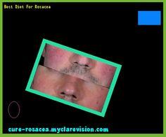 Best Diet For Rosacea 193823 - Cure Rosacea