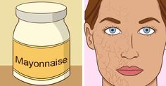 Mayonnaise is rich in eggs and oils. This is like a dream come true for your skin!