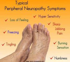 Can small fiber neuropathy be reversed diabetic neuropathy treatment options,hereditary idiopathic peripheral neuropathy natural treatment for peripheral neuropathy in feet,neuropathy numbness neuropathy pain relief in feet. Symptoms Of Neuropathy, Peripheral Neuropathy, Foot Remedies, Homeopathic Remedies, Natural Remedies, Arthritis Remedies, Homeopathic Medicine, Health Tips, Fibromyalgia