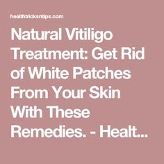 Natural Vitiligo Treatment: Get Rid of White Patches From Your Skin With These Remedies. - Health Tricks & Tips