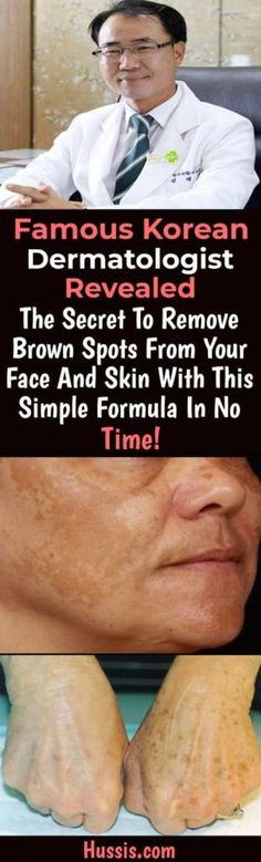 Famous Korean Dermatologist Revealed The Secret Remove Brown Spots From Your Face And Skin With This Simple Formula In No Time! – Mind is Health Black Spots On Face, Age Spots On Face, Brown Spots On Skin, Skin Spots, Dark Spots, Brown Skin, Acne Spots, Spots On Forehead, Remover Manchas