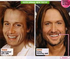 Chatter Busy: Keith Urban Plastic Surgery. What a change!!! Wow. Really, he did that? How poopy is that? Oh well, everybody knows I live with my head in the sand!!!!!!! I would not even recognize the person in the first pic.