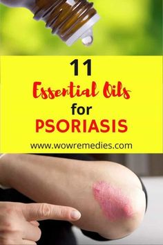 Are you looking for the best essential oils for psoriasis? Here are the top 11 essential oils that can soothe your psoriasis symptoms.