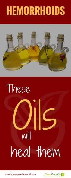 These essential oils will heal your hemorrhoids effectively and fast.