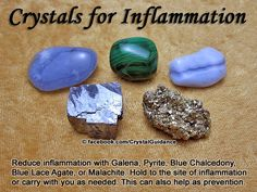 Crystals for Inflammation. Top Recommended Crystals: Galena, Pyrite, Blue Chalcedony, Blue Lace Agate, or Malachite. Additional Crystal Recommendations: Green Jasper, Turquoise, Aventurine, or Green Calcite.  Hold to the site of inflammation or carry with you as needed. This can also help as prevention for future flair ups.  Related Crystal Tips: Arthritis and Pain Relief
