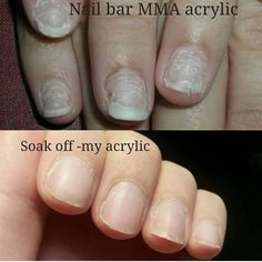 If your nails look like the top picture after acrylic removal most likely your salon/nail tech is using MMA acrylic monomer liquid. These liquids are VERY damaging and can leave you with drastic nail issues. They are usually used because of the price being so low. EMA acrylic monomers are recommended they are pricer but in the long run are worth it. Another way to check if your nail tech is using MMA monomers is if during the soak off (dissolving) process the acrylic is sticky almost stringy gue Nails After Acrylics, Remove Acrylic Nails, French Acrylic Nails, Acrylic Nail Tips, Fall Acrylic Nails, Gel Nail, Acrylic Nail Supplies, Nail Remover, Damaged Nails