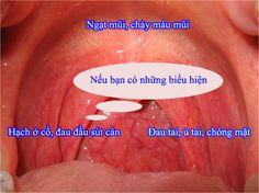 ung thư vòm họng -akchongungthu.com