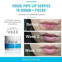 Rodan+Fields Lip Renewing Serum used daily in conjunction with their AMP MD Roller really plumps your lips and makes them healthy & younger looking (and NO NEEDLE!)