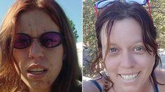 Mulher larga as drogas e viraliza fotos e relato de recuperação