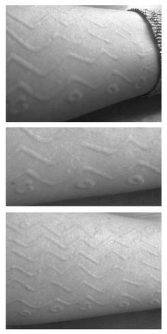 9 Home Remedies for Dermatographic Urticaria