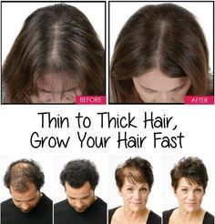There are no shortcuts to increasing delicious, long locks. On standard, hair grows about a half an inch in 30 days. Your common health, well-being, plus inherited factors influence your rate of hair growth. You can hearten hair growth by maintain healthy hair through a superior diet and correct hair care. You can go from thin to Thick Hair and grow it fast with this remedy.