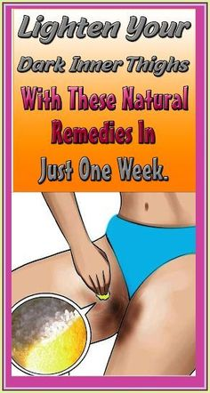How To Lighten Dark Inner Thighs Naturally Daily Health Tips, Health Articles, Health Facts, Oral Health, Health Care, Health Diet, Keeping Healthy, How To Stay Healthy, Healthy Tips