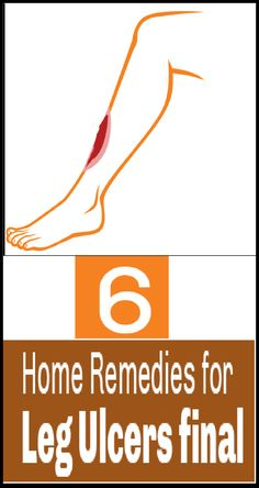 13 Effective Home Remedies To Cure Leg Ulcers Naturally How To Avoid Diabetes, How To Treat Diabetes, Cure Diabetes Naturally, Hair Loss Remedies, Home Remedies, Natural Remedies, Health Remedies, Type 2 Diabetes Treatment, Legs