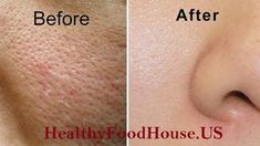 All Open Pores Will Disappear from Your Skin Forever – In Just 3 Days – healthyfoodhouse. Homemade Beauty, Skin Treatments, Getting Old, Beauty Skin, Your Skin, Beauty Hacks, Skin Care, Day, Health
