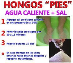 Remedios para los hongos de los pies