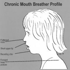 Taken from TMJ & Sleep Therapy Centre of Memphis. Picture reflects who long-term mouth breathing can be seen on face of a child. Link below for full read.    http://www.memphistmj.com/MouthBreathing.html