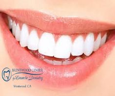 Do you need the best teeth whitening in Westwood CA? Call Brentwood Center for Cosmetic Dentistry at 310-312-0505 offers Zoom teeth whitening. It is a teeth-bleaching procedure performed in our dental office. In just one hour, you can achieve up to 6 shades whiter teeth. Zoom is an industry leading method of tooth cleaning/whitening in Westwood with apparent brilliant and rapid results.