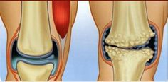 6 anti-inflamatórios naturais para tratar e curar dores nos joelhos e articulações! | Cura pela Natureza