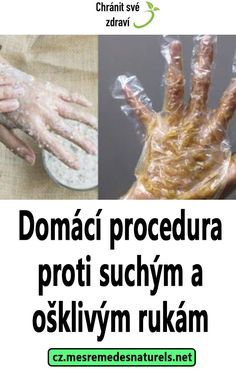 Domácí procedura proti suchým a ošklivým rukám Healthy, Fitness, Diet, Health