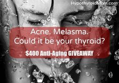 I've heard from countless Hypothyroid Mom readers struggling with skin-related issues. Acne and melasma are big ones. I decided to dig into the research. Hashimoto Thyroid Disease, Thyroid Issues, Thyroid Cancer, Thyroid Health, Vitiligo Treatment, Acne Treatment, Hormonal Acne, Rosacea, Pimples