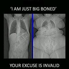 Xray Humor...love it!