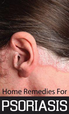 DIY Psoriasis Remedies ~ Home Remedies For Psoriasis | Cute Parents