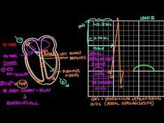 (13) Normal sinus rhythm on an EKG | Cardiac dysrhythmias and tachycardias | Khan Academy