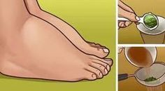 3 přírodní prostředky, které pomohou na otoky kotníků a nohou