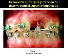 Exposición quirúrgica y tracción de incisivo central superior impactado. Caso clínico | OVI Dental