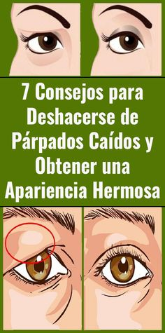 7 Tips to Get Rid of Fallen Eyelids and Get a Beautiful Look Salud y mas Beauty Secrets, Beauty Hacks, Gym Workouts, Health And Beauty, Rid, Health Fitness, Face, Trauma, Beautiful
