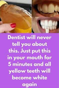 Dentist will never tell you about this. Just put this in your mouth for 5 minutes and all yellow teeth will become white again Your smile can say many things without a word and a shining set of super white teeth can make your more attractive. Most common Teeth Health, Healthy Teeth, Dental Health, Dental Care, Natural Home Remedies, Natural Healing, Health And Beauty Tips, Health Tips, Teeth Whitening Remedies