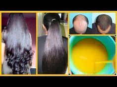 Homemade Magical Hair Serum For Long Hair, Strong Hair, Black Hair and Remove Dandruff in a week Homemade Hair Serum, Diy Beauty, Beauty Hacks, Getting Rid Of Dandruff, Strong Hair, Shiny Hair, Hair Health, Hair Hacks, Hair Tips