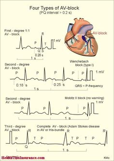 Types Of Atrio - Ventricular Heart Blocks ◬