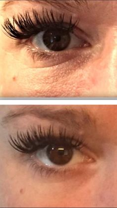 Nerium Eye Serum results!