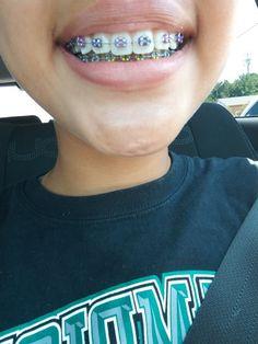 Fake Braces, Braces Smile, Braces Tips, Kids Braces, Dental Braces, Teeth Braces, Dental Care, Damon Braces, Cute Braces Colors