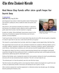 Very humbled and proud to be involved and support Red Nose Day New Zealand. Article from the New Zealand Herald. Skin Grafting, Red Nose Day, New Day, Brand New Day